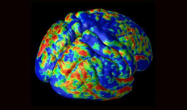 Photo of Подорож в мозок (10 фото)
