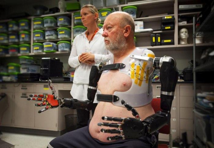 Photo of Нейропротези керовані силою думки, для людей, які втратили кінцівки