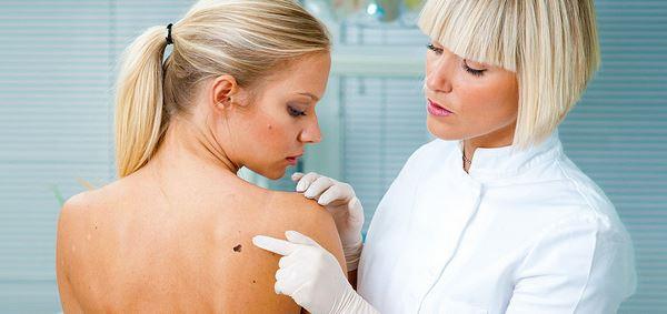 Photo of Рак шкіри: різновиди, лікування, фактори ризику — Lissod