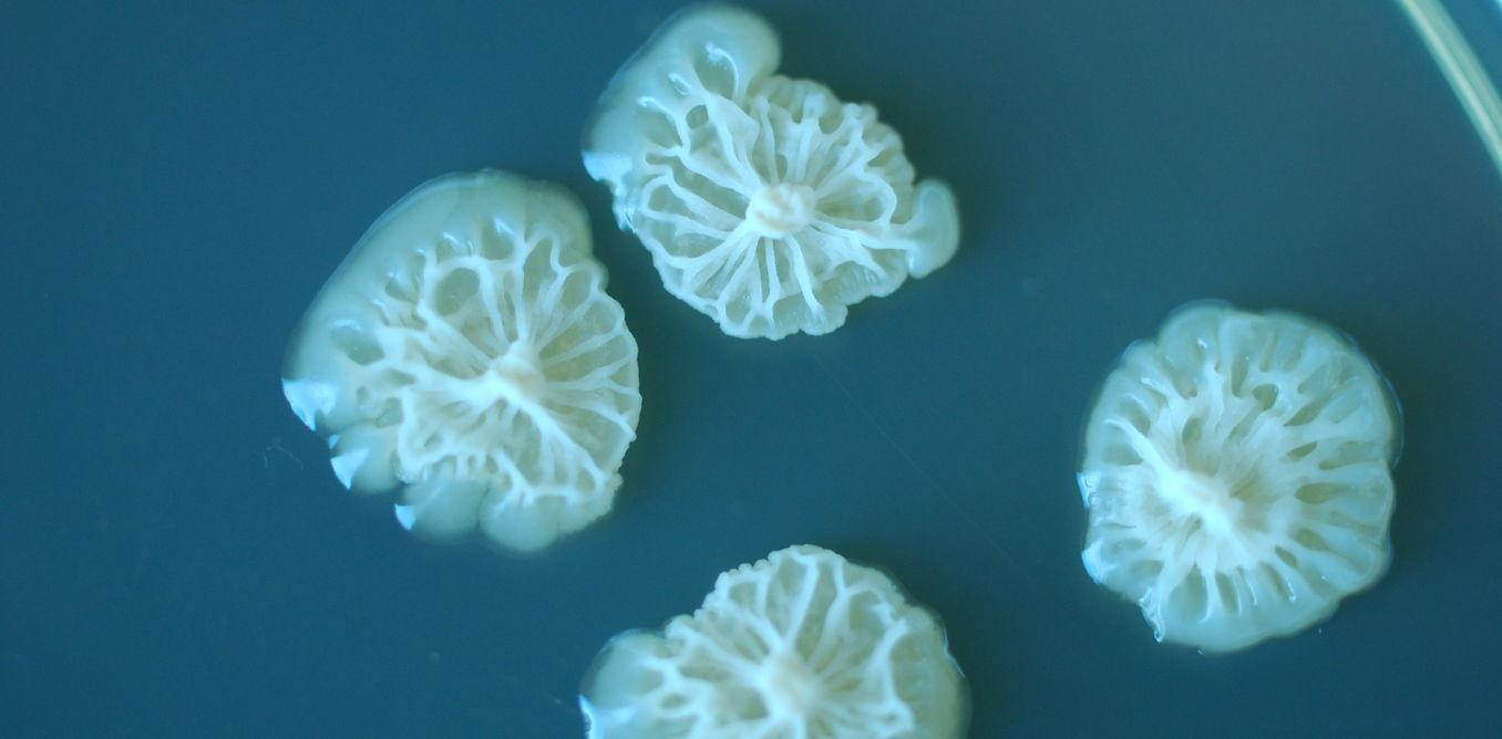 Photo of Виявлено, що бактерії можуть розвиватись у космосі швидше, ніж на Землі