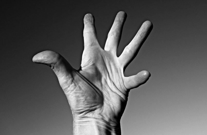 Photo of Вчені пояснили хрускіт пальців руйнуванням бульбашок в суглобах