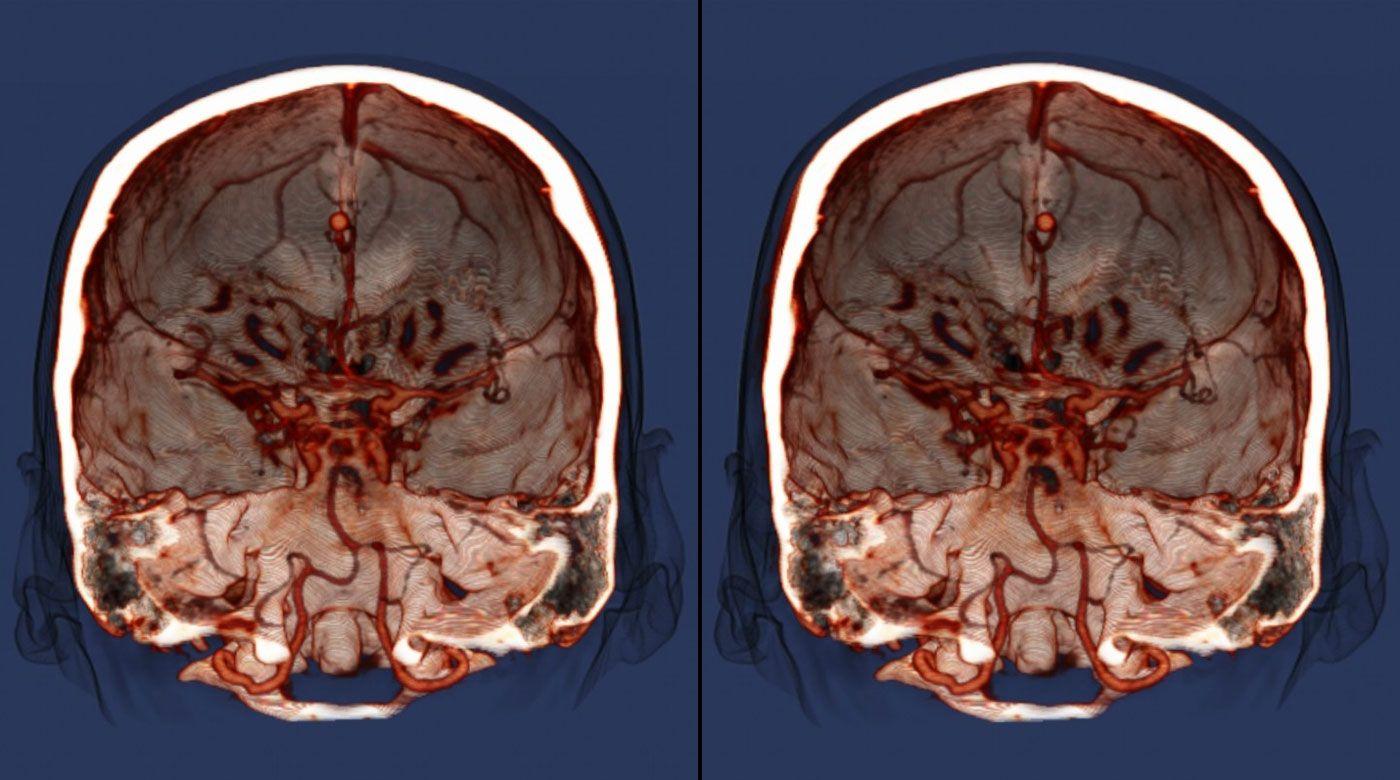 Photo of Мозок людини намагається переключити увагу чотири рази в секунду