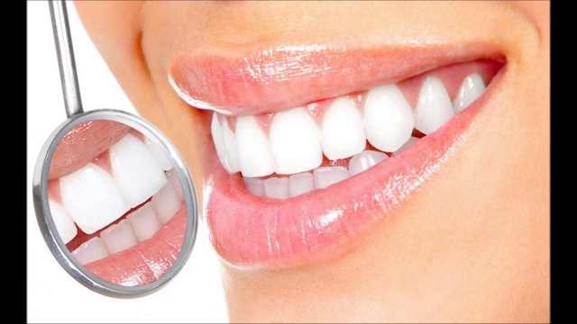 Photo of Як зберегти зуби білими?