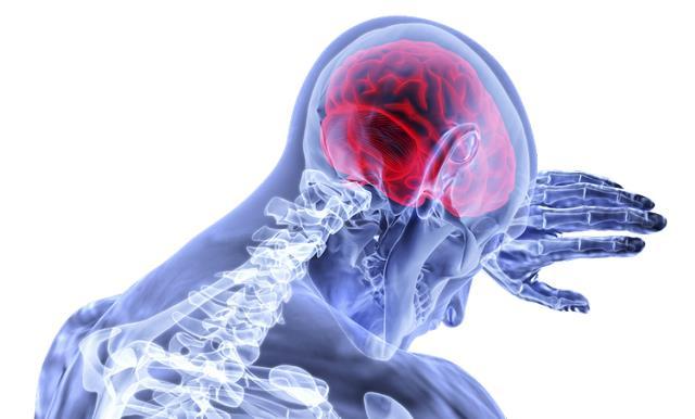Photo of Стали відомі важливі подробиці про пухлини мозку