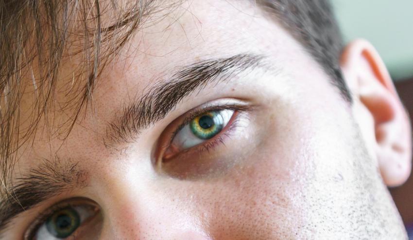 Photo of Медики: Темні кола під очима сигналізують про небезпечні хвороби