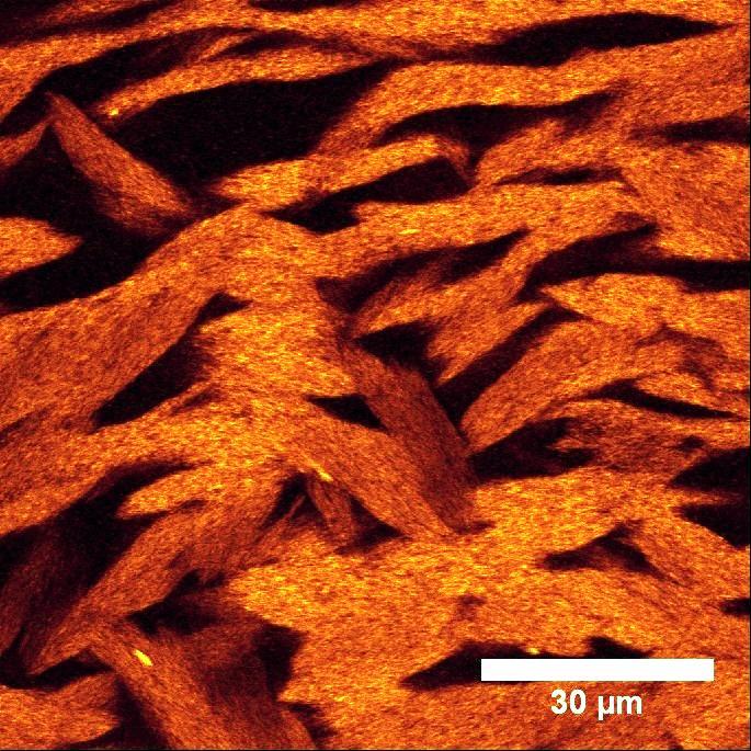 Photo of Вчені створили новий клас матеріалів — нелипкі гелі