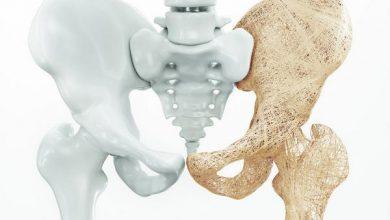 Photo of Остеопороз: методы лечения и профилактики