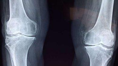Photo of Погана якість кісток пов'язана з поганим здоров'ям серця