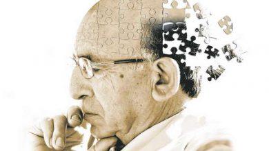 Photo of Старече слабоумство може бути розплатою за унікальні здібності нашого мозку