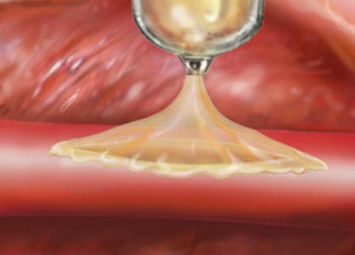 """Новий медичний суперклей дозволяє """"залатати"""" тріщини в серці і кровоносних судинах"""