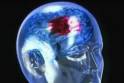 Жінки більш схильні до розвитку інсульту, ніж чоловіки