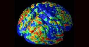 Подорож в мозок (10 фото)