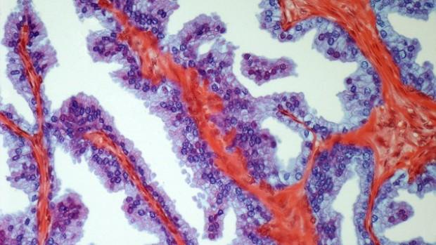Аспірин допоможе знизити ризик розвитку раку простати